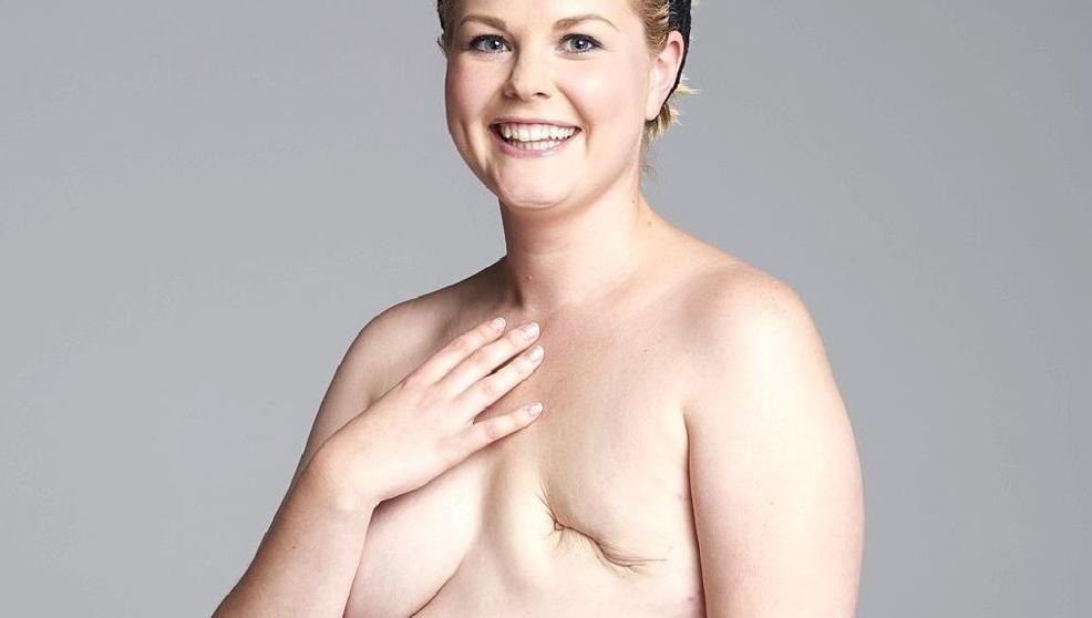 Mastectomie: en quoi elle consiste ?