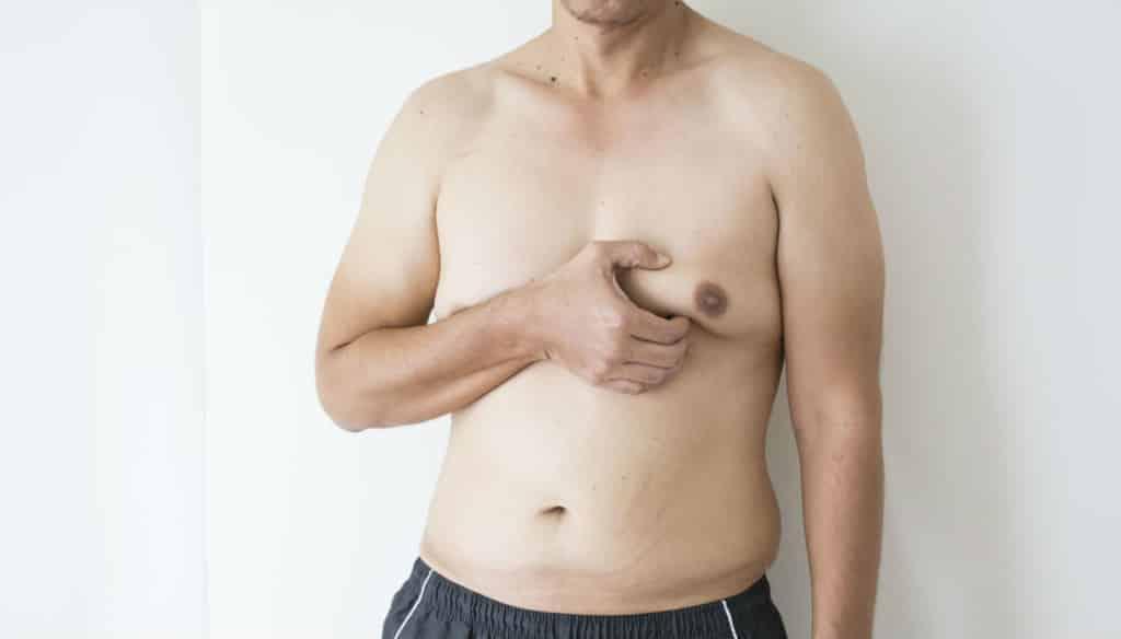 Chirurgie de correction de la gynécomastie